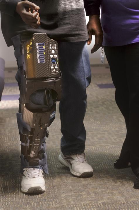 bionic leg 9